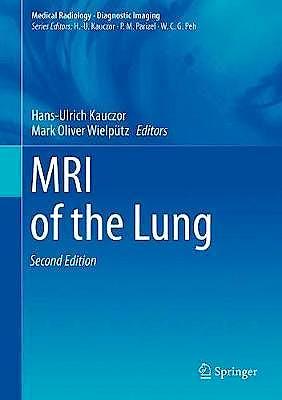 Portada del libro 9783319426167 MRI of the Lung