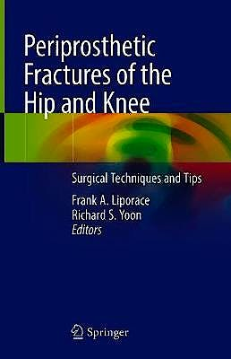Portada del libro 9783319430072 Periprosthetic Fractures of the Hip and Knee. Surgical Techniques and Tips