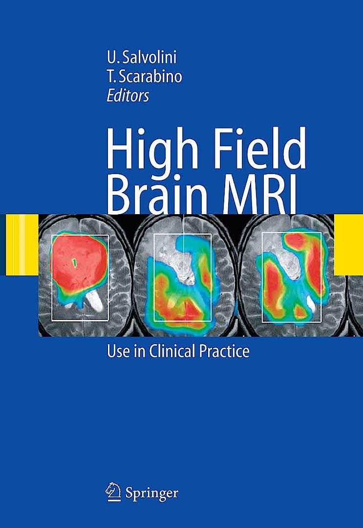 Portada del libro 9783319441733 High Field Brain Mri. Use in Clinical Practice