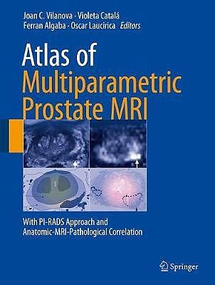 Portada del libro 9783319617855 Atlas of Multiparametric Prostate MRI. With PI-RADS Approach and Anatomic-MRI-Pathological Correlation