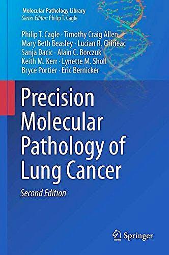 Portada del libro 9783319629407 Precision Molecular Pathology of Lung Cancer (Molecular Pathology Library, Vol. 13) (Hardcover)