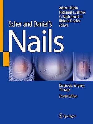 Portada del libro 9783319656472 Scher and Daniel's Nails. Diagnosis, Surgery, Therapy
