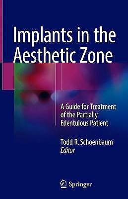 Portada del libro 9783319726007 Implants in the Aesthetic Zone. A Guide for Treatment of the Partially Edentulous Patient