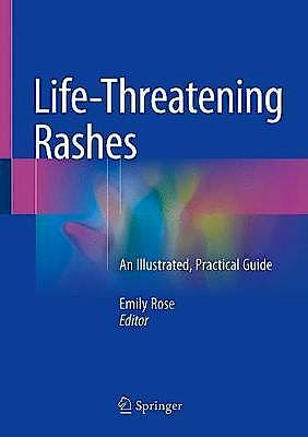 Portada del libro 9783319756226 Life-Threatening Rashes. An Illustrated, Practical Guide