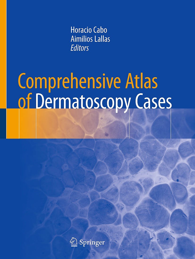 Portada del libro 9783319769318 Comprehensive Atlas of Dermatoscopy Cases