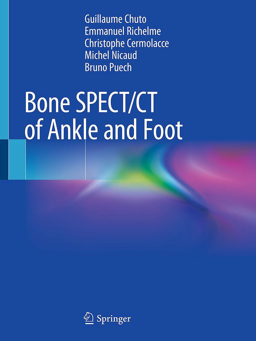 Portada del libro 9783319908106 Bone SPECT/CT of Ankle and Foot