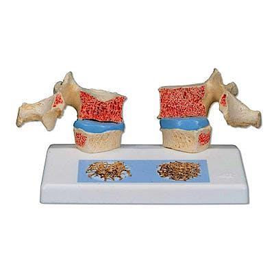 Modelo de Osteoporosis