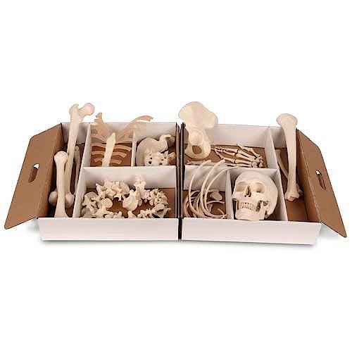 Medio Esqueleto Desarticulado. Mano y Pie Articulados con Alambre