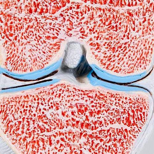 Modelo de la Articulacion de la Rodilla Dividido en 3 Partes