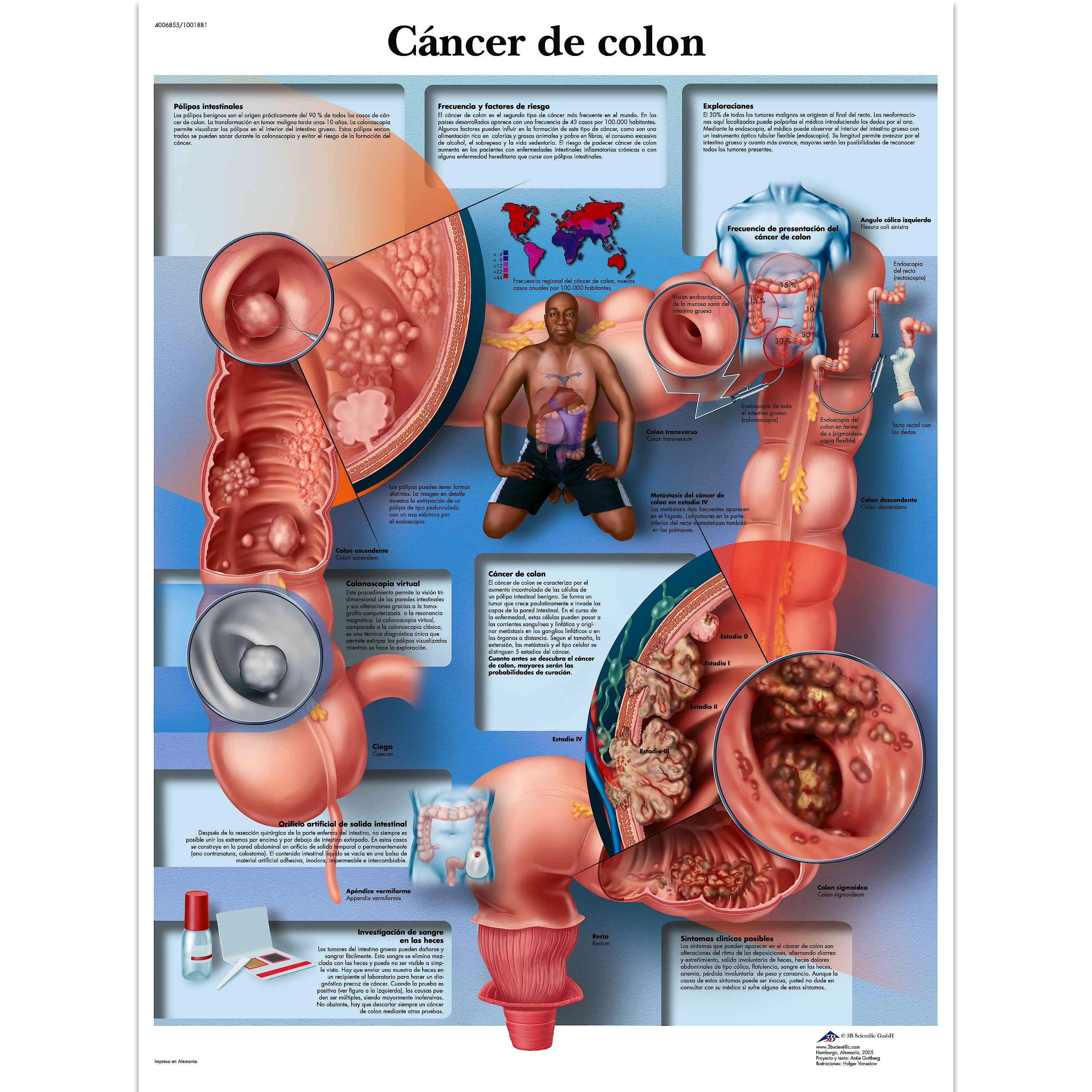 Lamina Cancer de Colon (formato 50 x 67 cm)