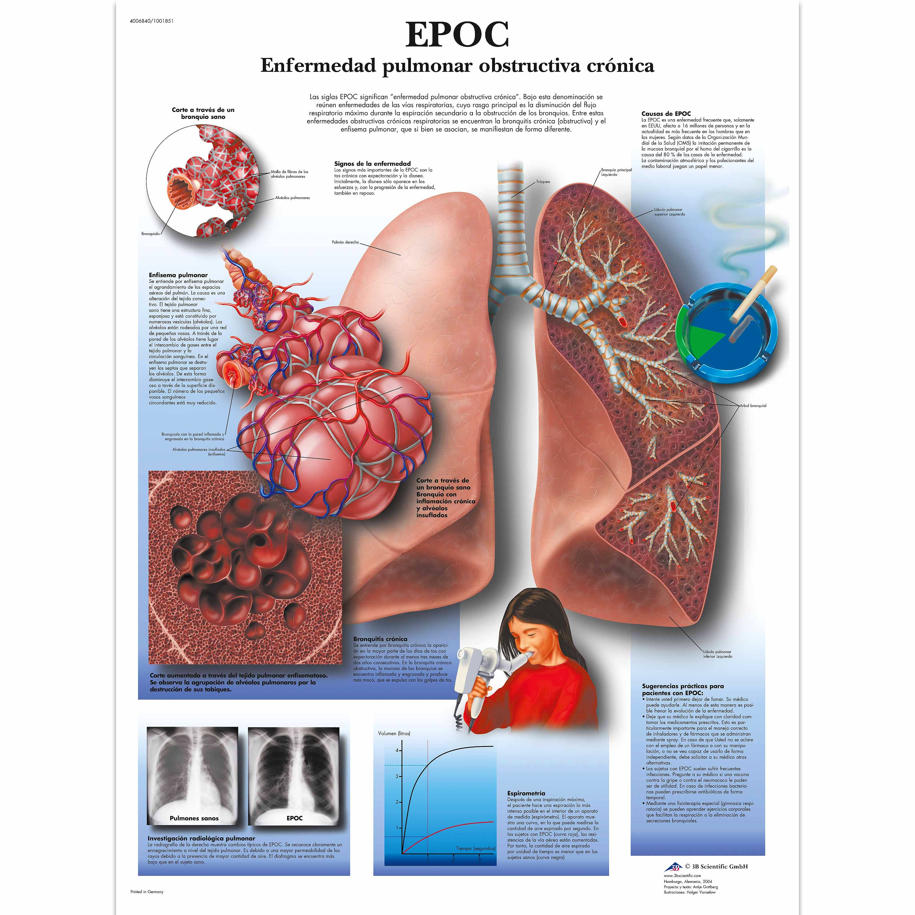 Lámina EPOC-Enfermedad Pulmonar Obstructiva Crónica (formato 50 x 67 cm)