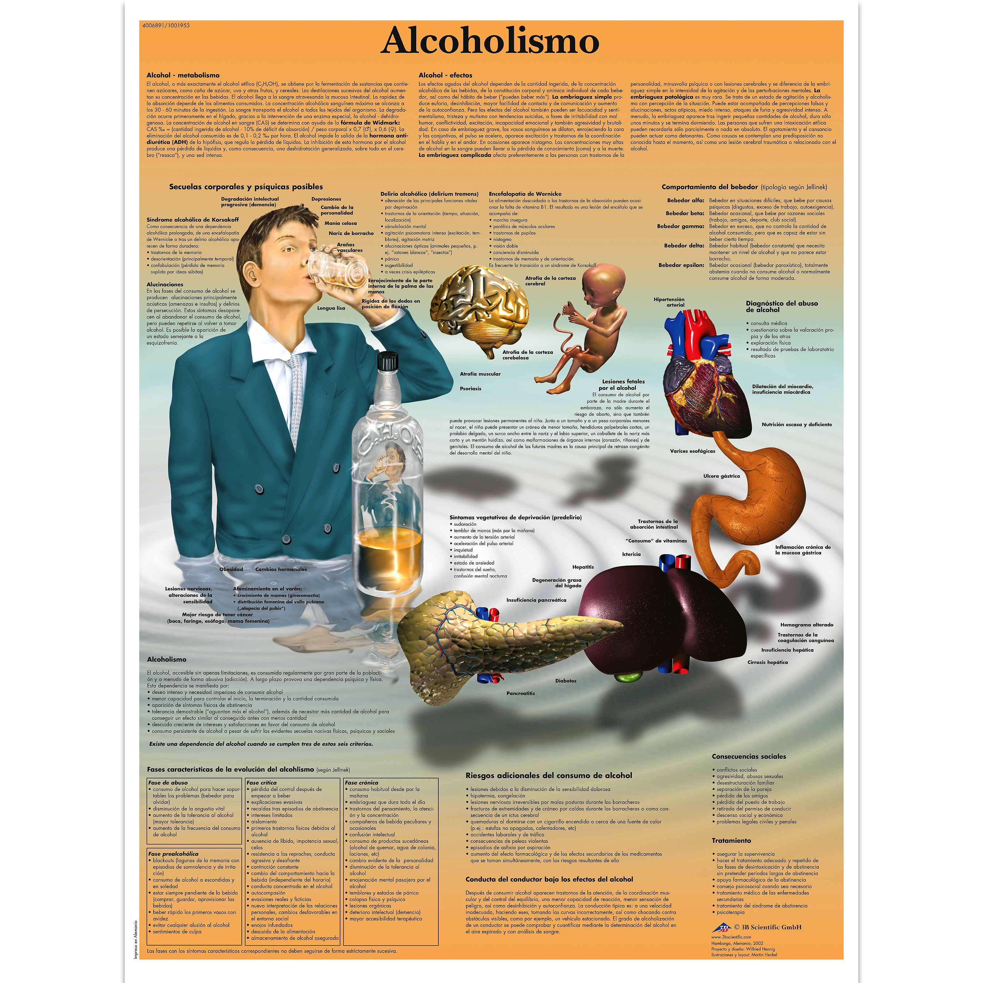 Lamina Alcoholismo (formato 50 x 67 cm)