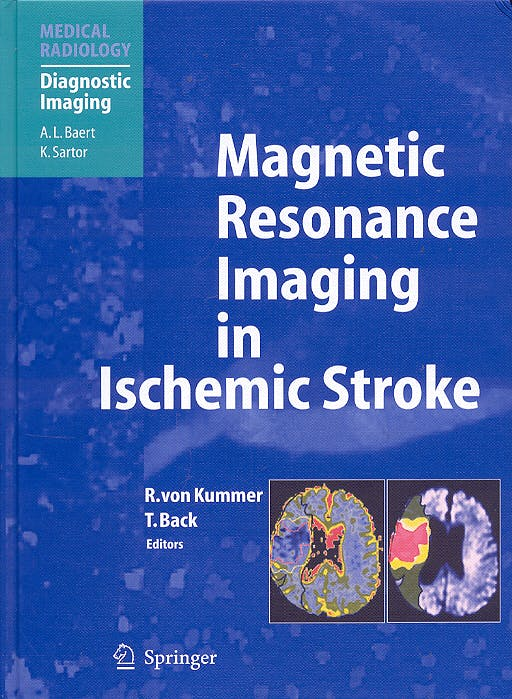 Portada del libro 9783540008613 Magnetic Resonance Imaging in Ischemic Stroke (Medical Radiology: Diagnostic Imaging)