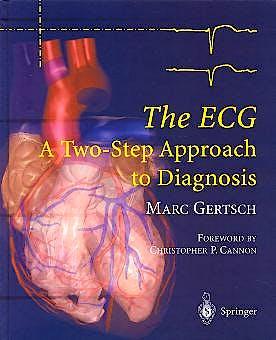 Portada del libro 9783540008699 The Ecg. a Two-Step Approach to Diagnosis