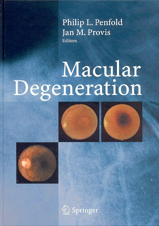 Portada del libro 9783540200581 Macular Degeneration