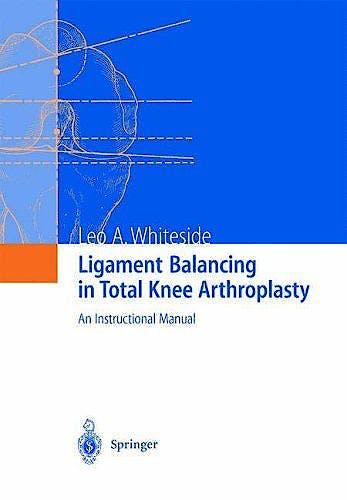 Portada del libro 9783540207498 Ligament Balancing in Total Knee Arthroplasty. an Instruction Manual