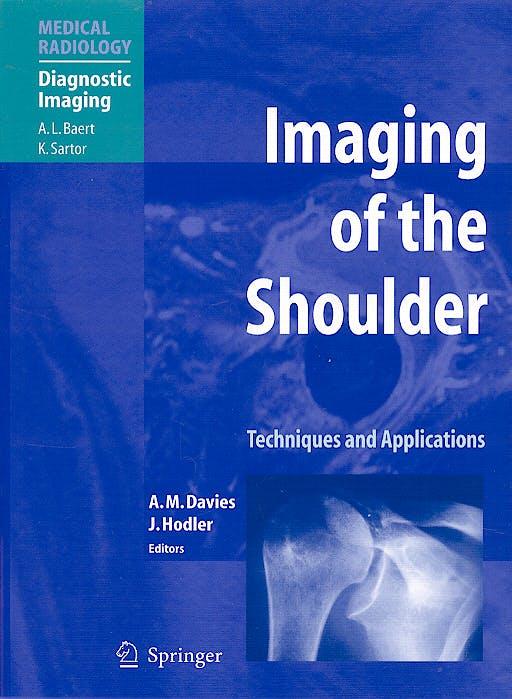 Portada del libro 9783540262480 Imaging of the Shoulder
