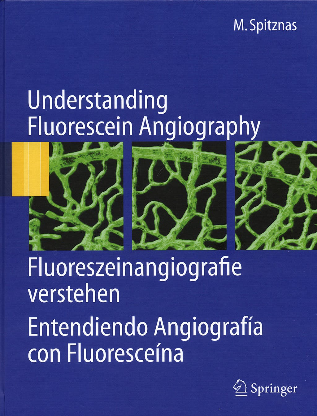 Portada del libro 9783540300601 Understanding Fluorescein Angiography