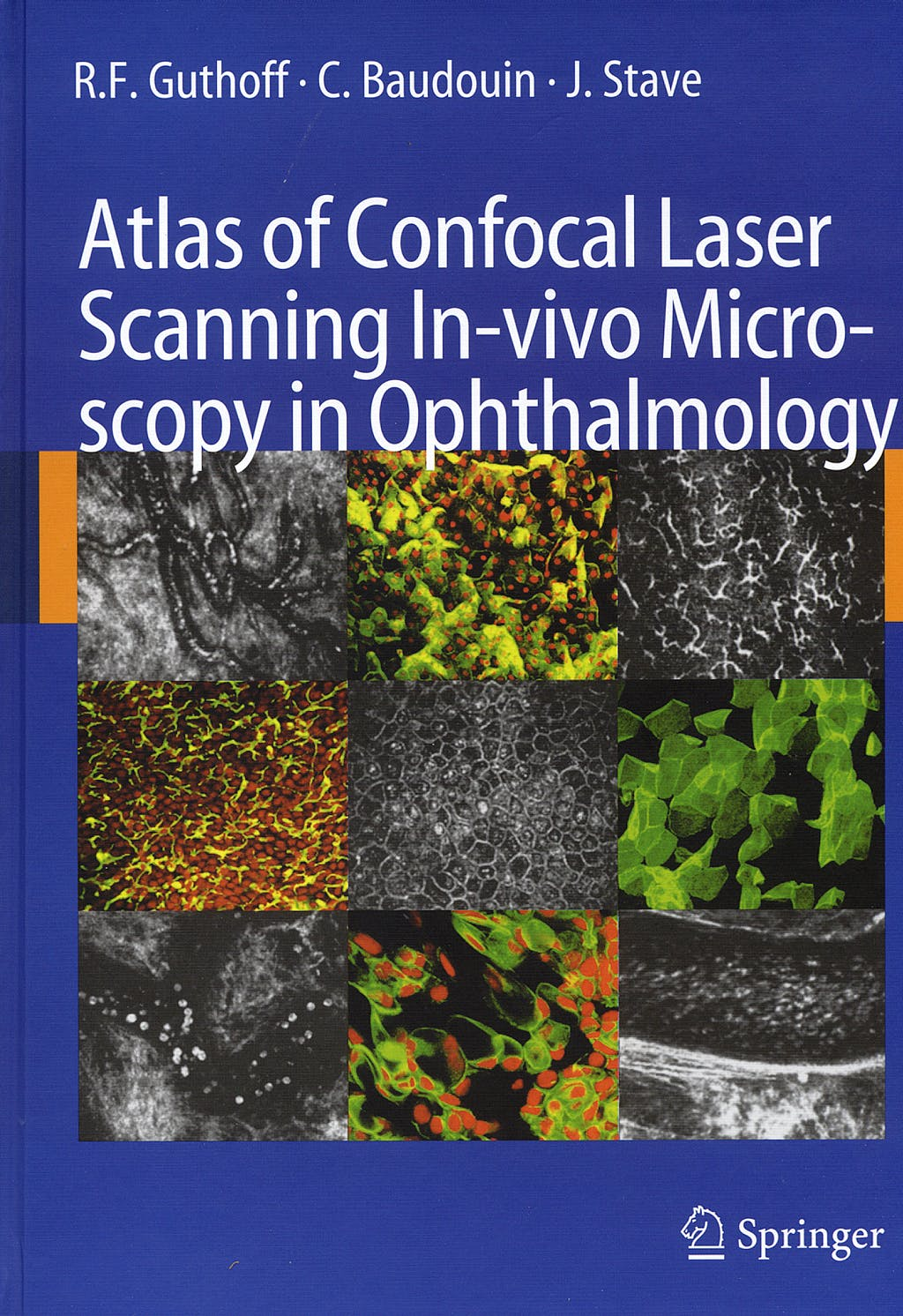 Portada del libro 9783540327059 Atlas of Confocal Laser Scanning In-Vivo Microscopy in Ophtalmology