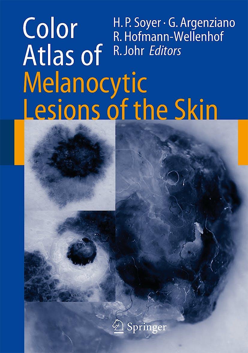 Portada del libro 9783540351054 Color Atlas of Melanocytic Lesions of the Skin