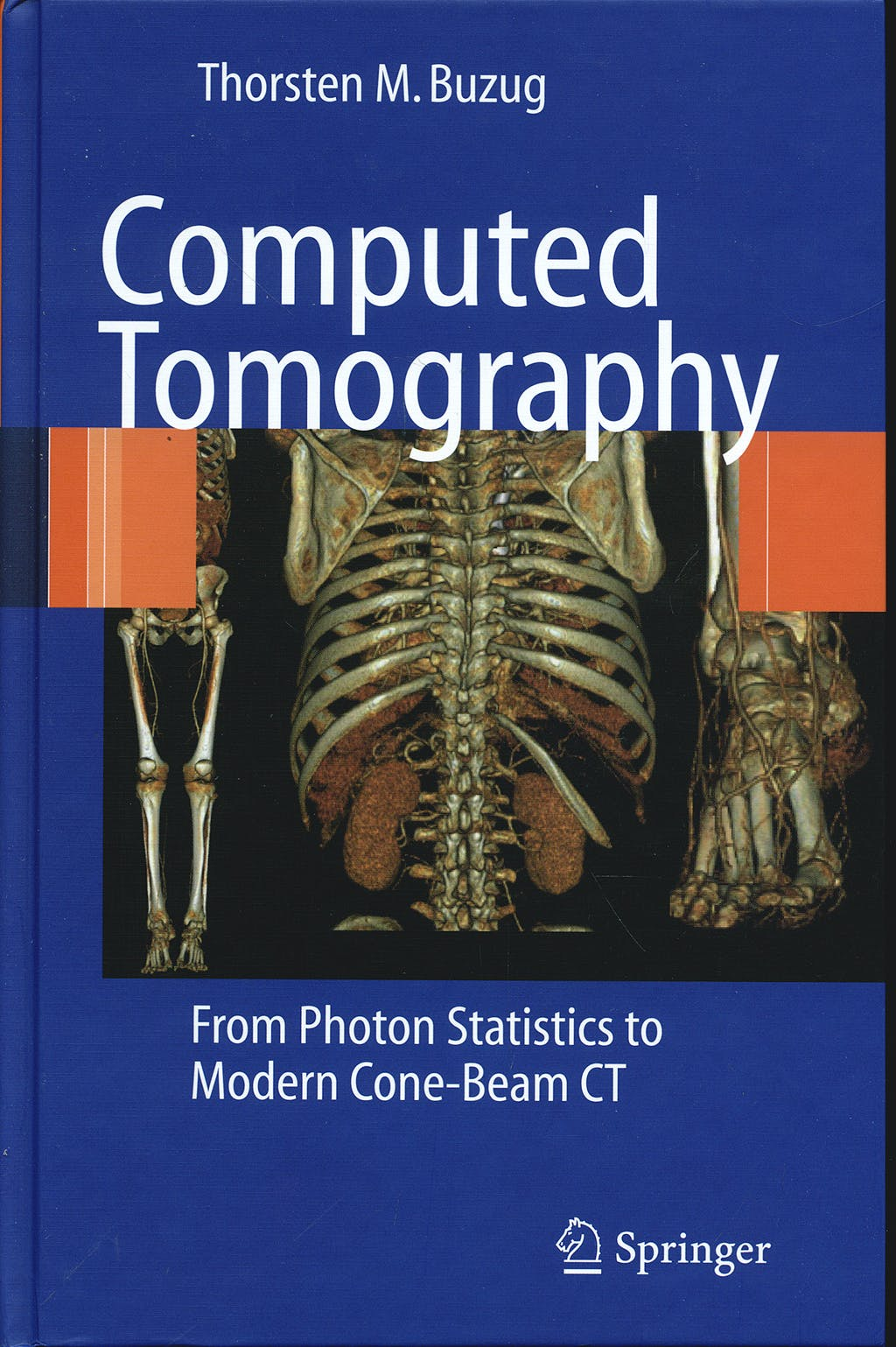 Portada del libro 9783540394075 Computed Tomography. from Photon Statistics to Modern Cone-Beam Ct