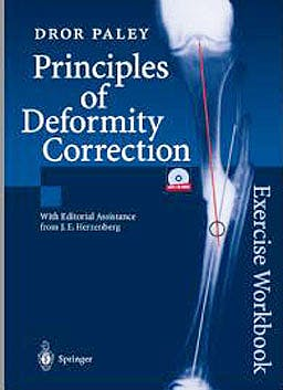 Portada del libro 9783540441618 Principles of Deformity Correction, Exercise Workbook + Cd-Rom