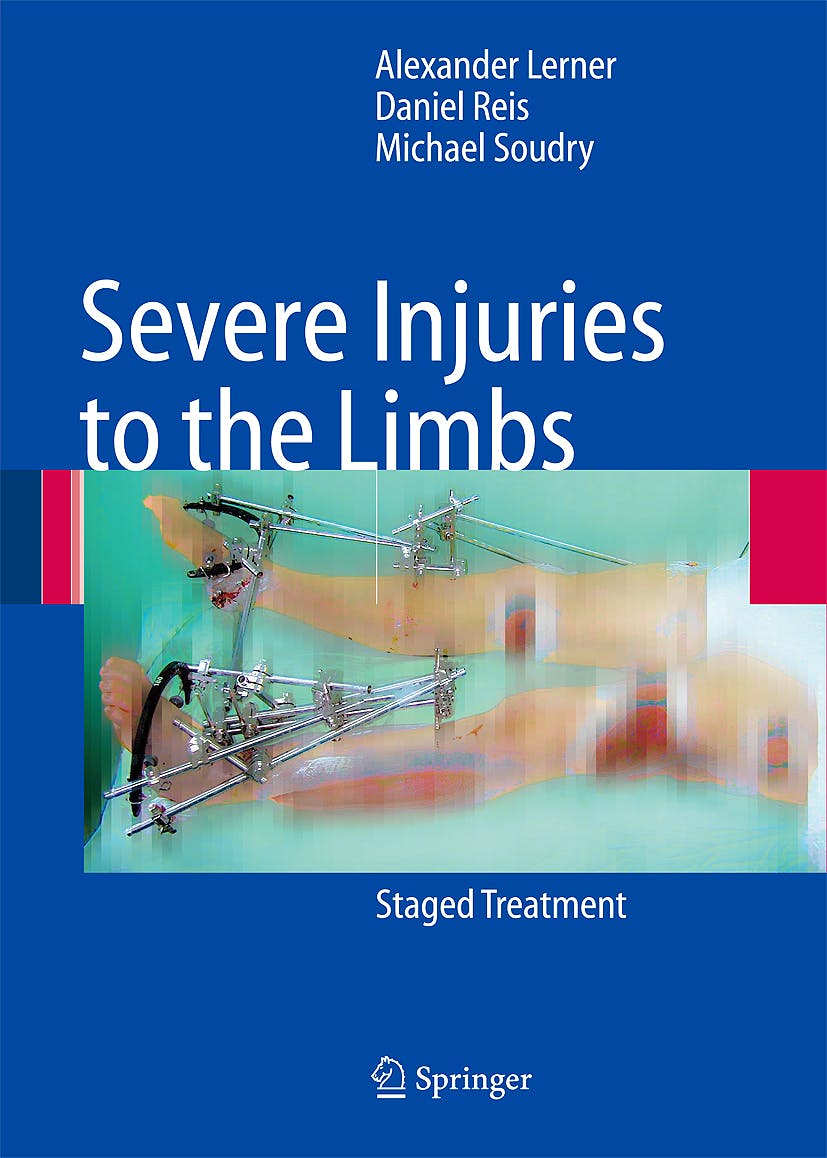Portada del libro 9783540698920 Severe Injuries to the Limbs - Staged Treatment