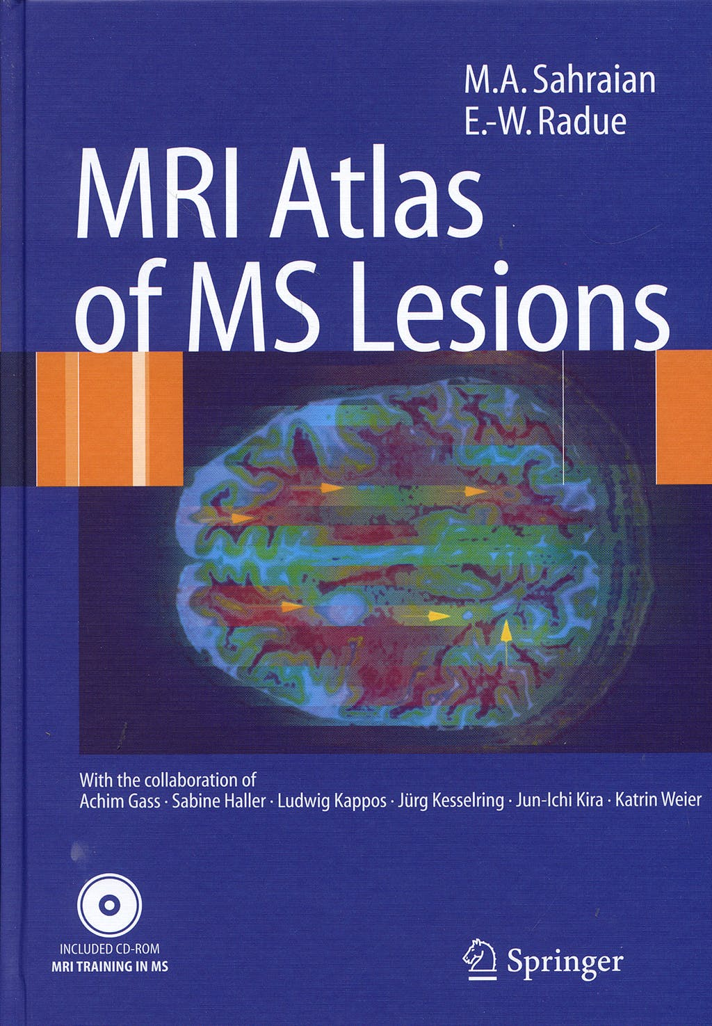 Portada del libro 9783540713715 Mri Atlas of Ms Lesions + Cd-Rom