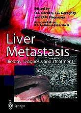 Portada del libro 9783540760757 Liver Metastasis