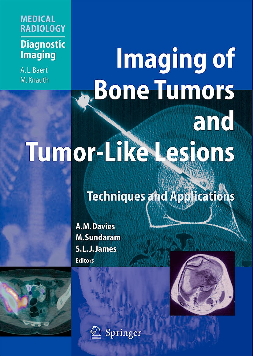 Portada del libro 9783540779827 Imaging of Bone Tumors and Tumor-Like Lesions. Techniques and Applications (Medical Radiology: Diagnostic Imaging)