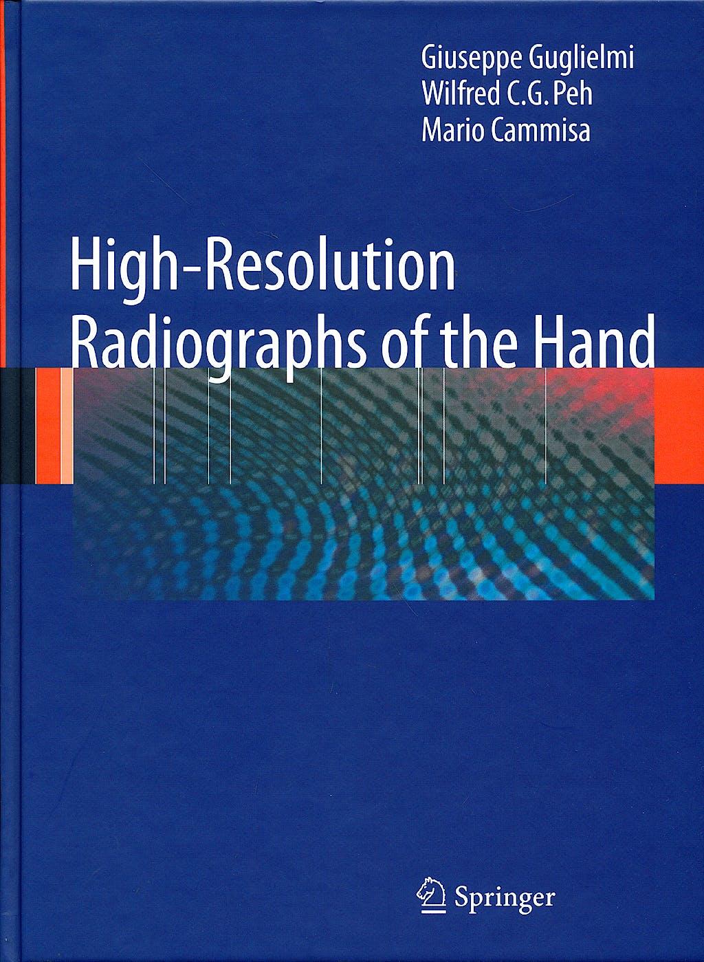 Portada del libro 9783540794790 High-Resolution Radiographs of the Hand