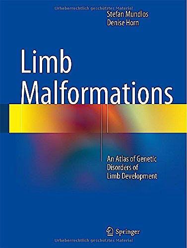 Portada del libro 9783540959274 Limb Malformations. an Atlas of Genetic Disorders of Limb Development