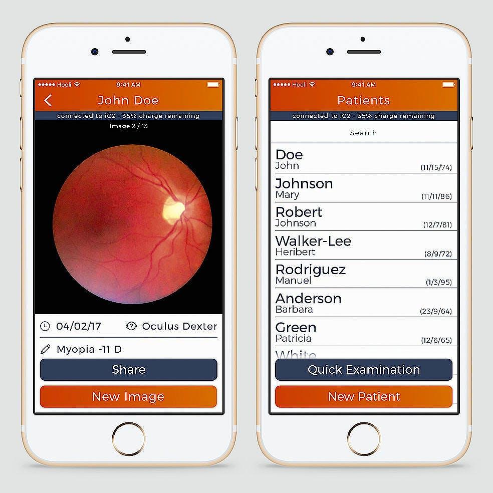Funduscopio Heine IC2 Set/6 para Captura de Imágenes del Fondo del Ojo, C/carcasa-Adaptador para Iphone 6/6s