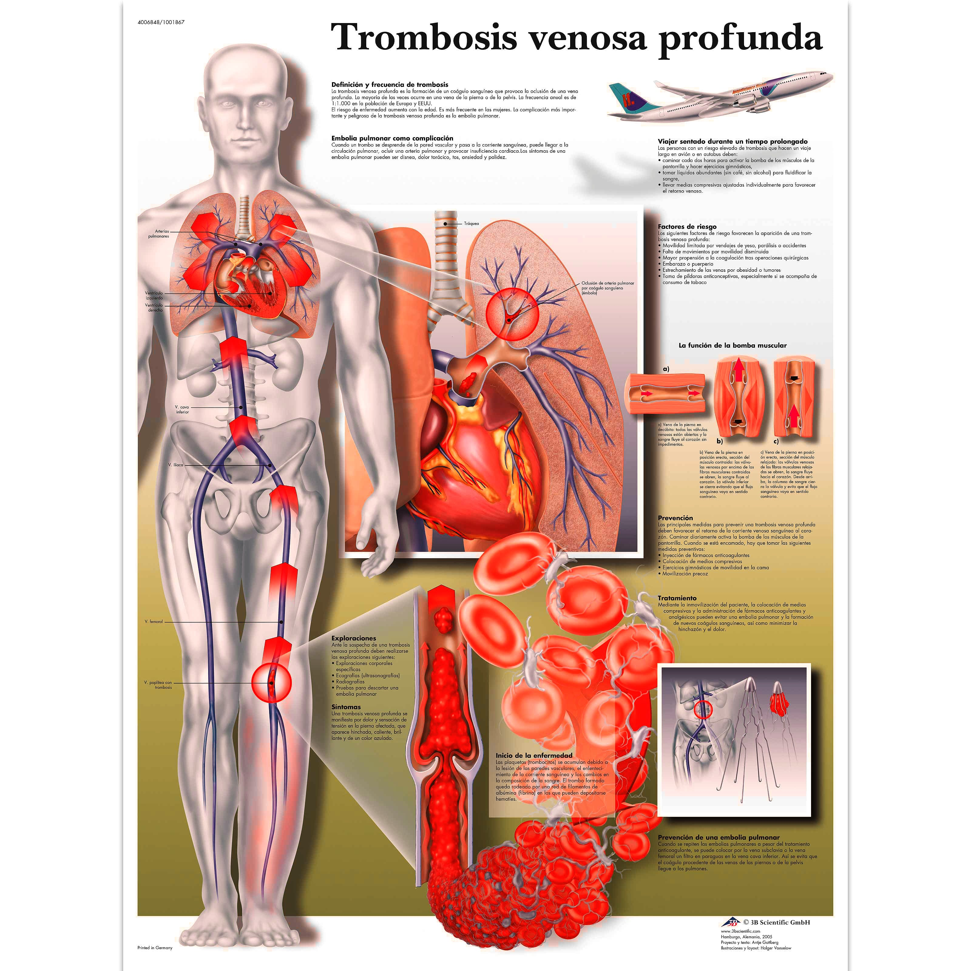 Lamina Trombosis (formato 50 x 67 cm)