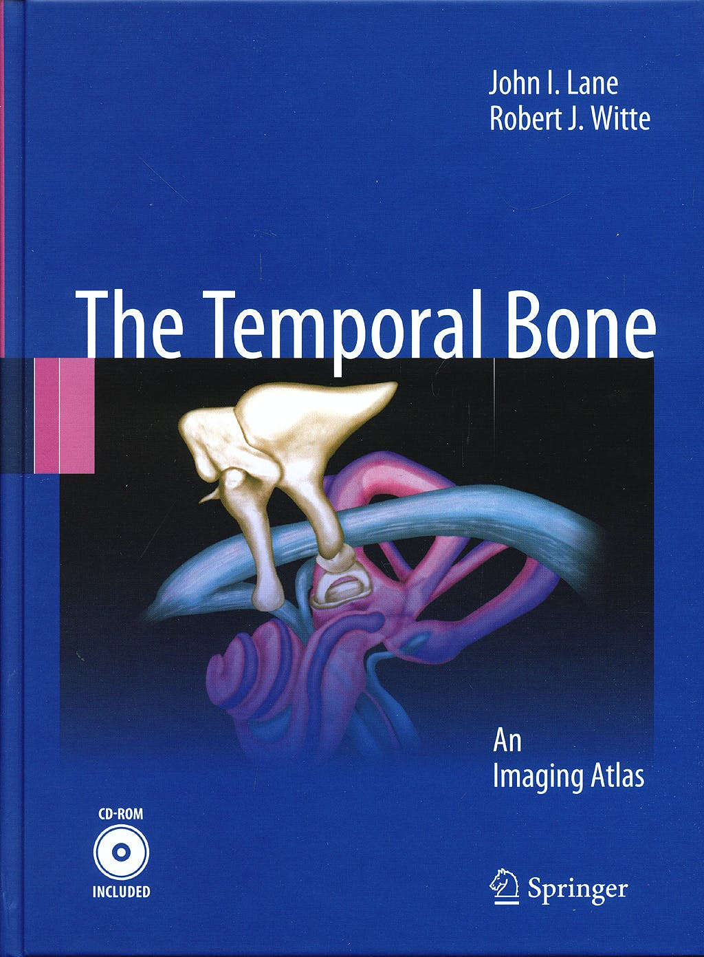 Portada del libro 9783642022098 The Temporal Bone. an Imaging Atlas + Cd-Rom