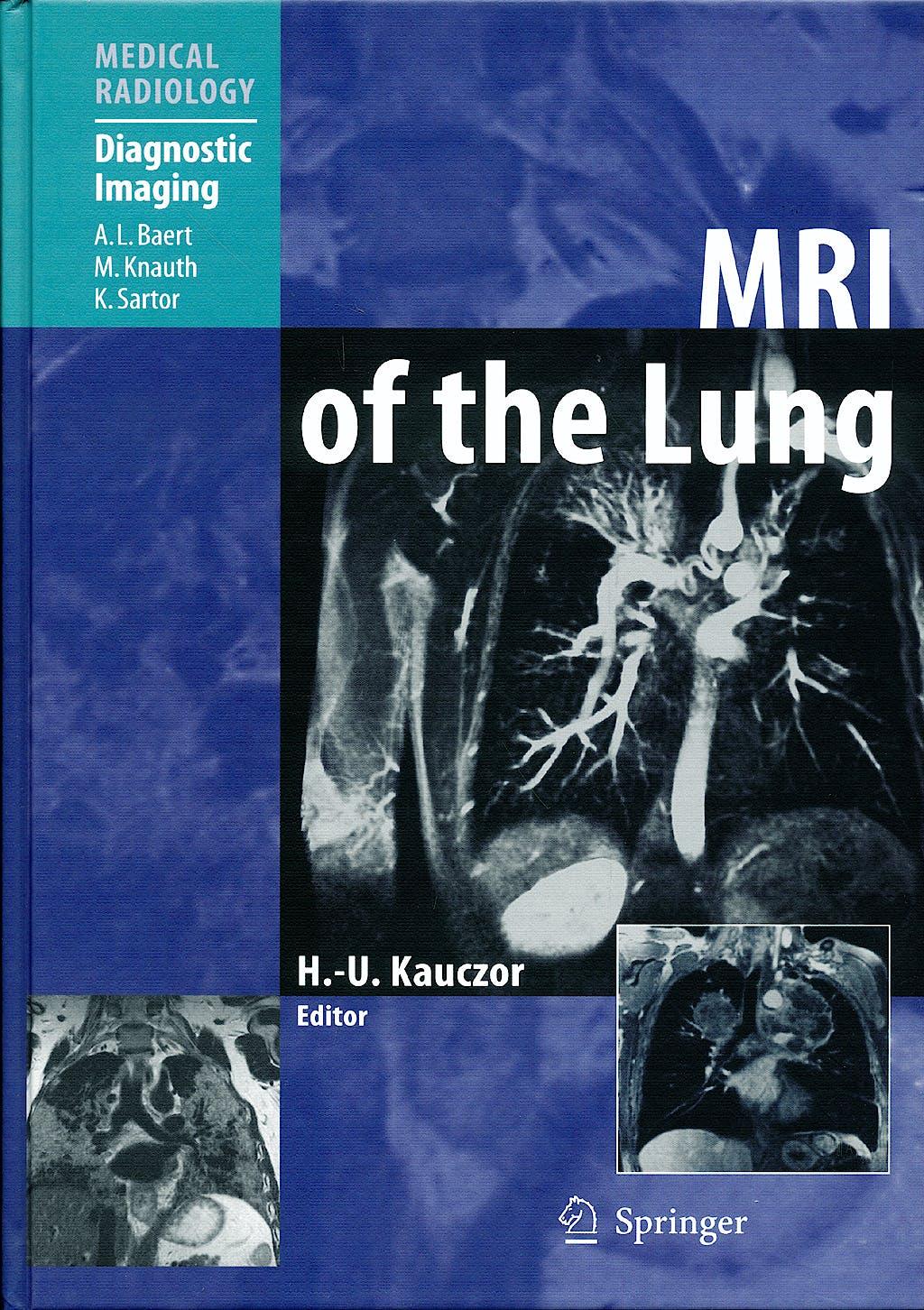 Portada del libro 9783642070990 Mri of the Lung (Medical Radiology: Diagnostic Imaging)