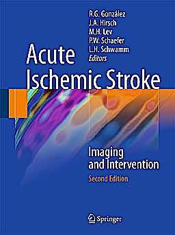 Portada del libro 9783642127502 Acute Ischemic Stroke