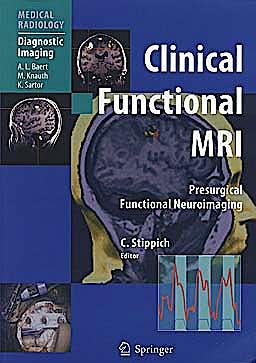Portada del libro 9783642140051 Clinical Functional Mri. Presurgical Functional Neuroimaging