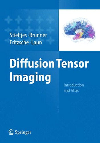 Portada del libro 9783642204555 Diffusion Tensor Imaging. Introduction and Atlas + Cd-Rom