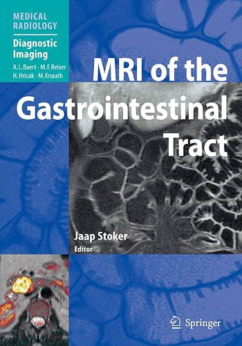 Portada del libro 9783642235856 Mri of the Gastrointestinal Tract (Medical Radiology: Diagnostic Imaging)