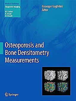 Portada del libro 9783642278839 Osteoporosis and Bone Densitometry Measurements (Medical Radiology: Diagnostic Imaging)