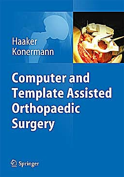 Portada del libro 9783642297274 Computer and Template Assisted Orthopedic Surgery
