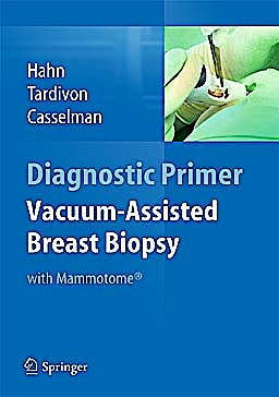 Portada del libro 9783642342707 Vacuum-Assisted Breast Biopsy with Mammotome