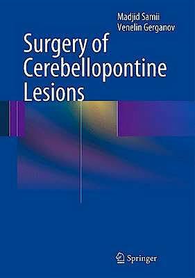 Portada del libro 9783642354212 Surgery of Cerebellopontine Lesions