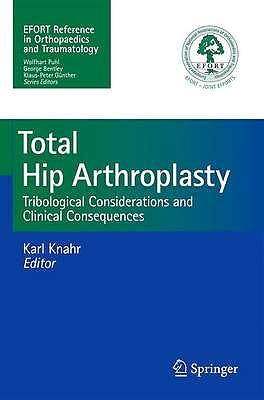 Portada del libro 9783642356520 Total Hip Arthroplasty. Tribological Considerations and Clinical Consequences