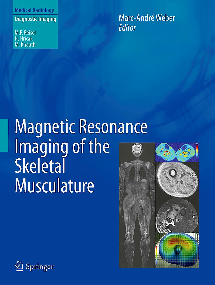 Portada del libro 9783642372186 Magnetic Resonance Imaging of the Skeletal Musculature (Medical Radiology: Diagnostic Imaging)