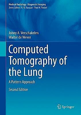 Portada del libro 9783642395178 Computed Tomography of the Lung. A Pattern Approach