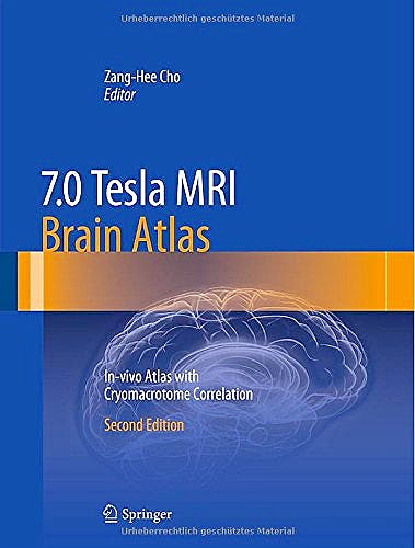 Portada del libro 9783642543975 7.0 Tesla Mri Brain Atlas. In-Vivo Atlas with Cryomacrotome Correlation