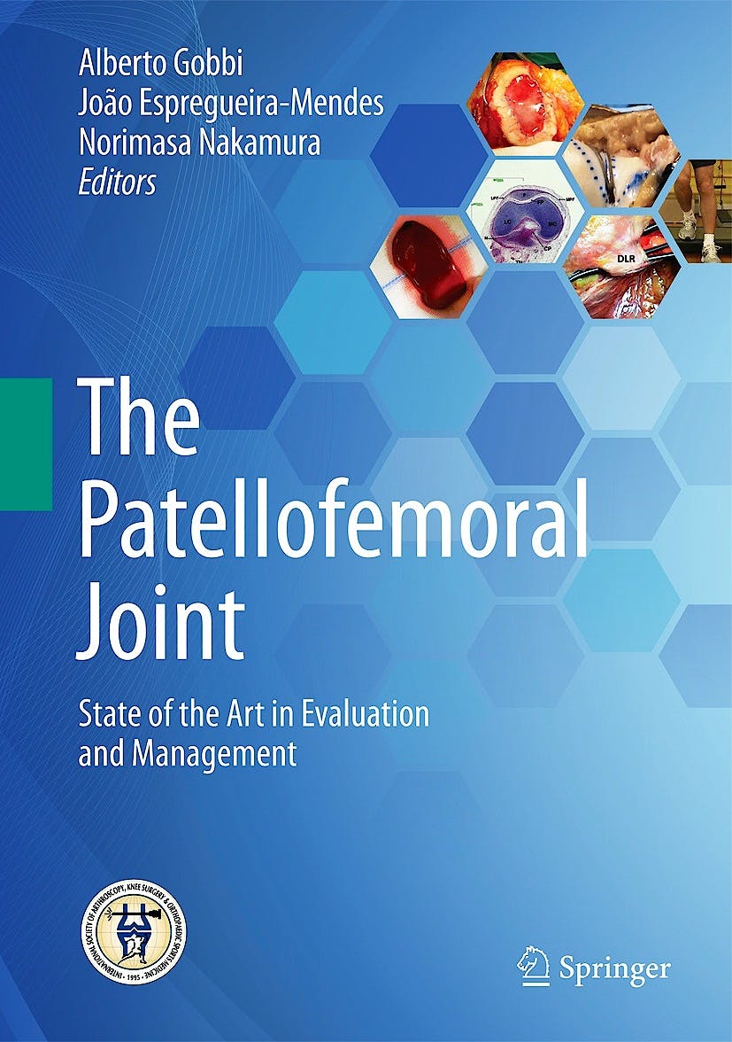 Portada del libro 9783642549649 The Patellofemoral Joint. State of the Art in Evaluation and Management