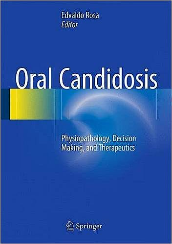 Portada del libro 9783662471937 Oral Candidosis. Physiopathology, Decision Making, and Therapeutics